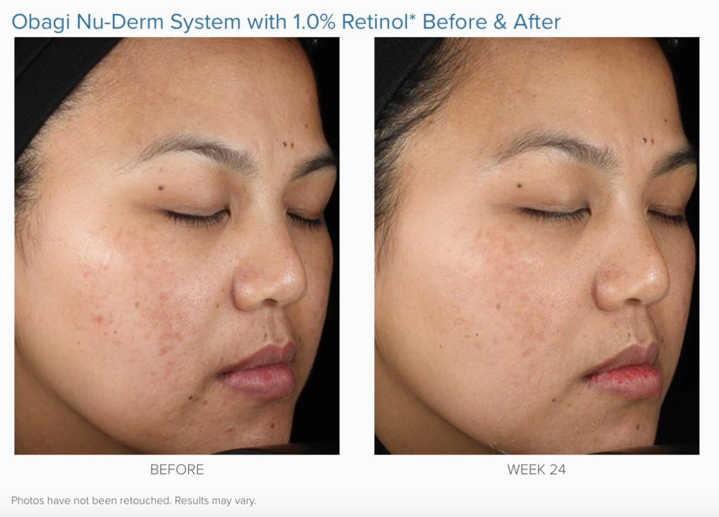 Obagi Nu Derm System Lumina Skin